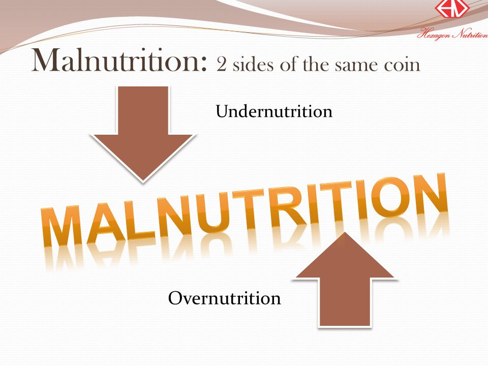 Malnutrition: 2 sides of the same coin Undernutrition Overnutrition