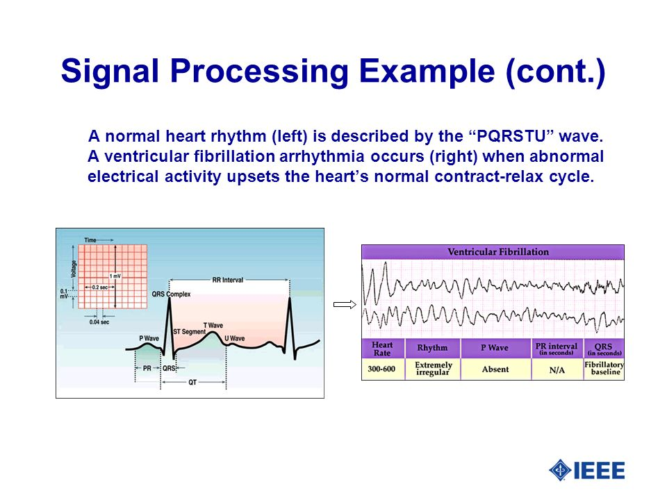 Signal Processing Example (cont.) A normal heart rhythm (left) is described by the PQRSTU wave.