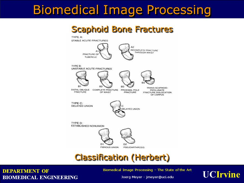 UCIrvine Biomedical Image Processing – The State of the Art Joerg Meyer - jmeyer@uci.edu DEPARTMENT OF BIOMEDICAL ENGINEERING Biomedical Image Processing Classification (Herbert) Scaphoid Bone Fractures