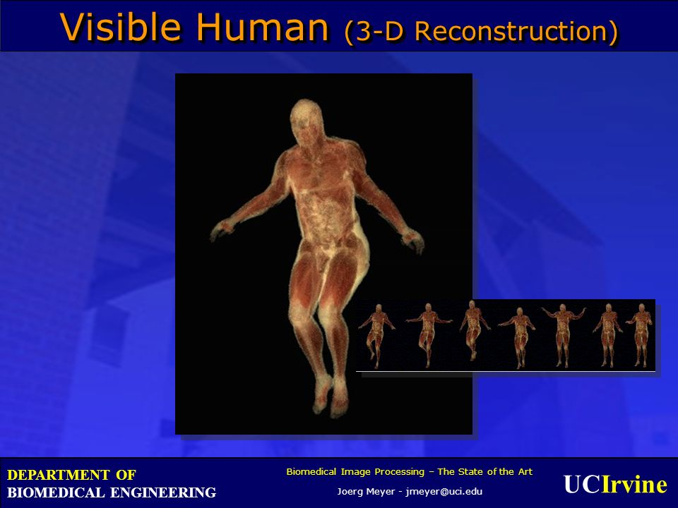 UCIrvine Biomedical Image Processing – The State of the Art Joerg Meyer - jmeyer@uci.edu DEPARTMENT OF BIOMEDICAL ENGINEERING Visible Human (3-D Reconstruction)