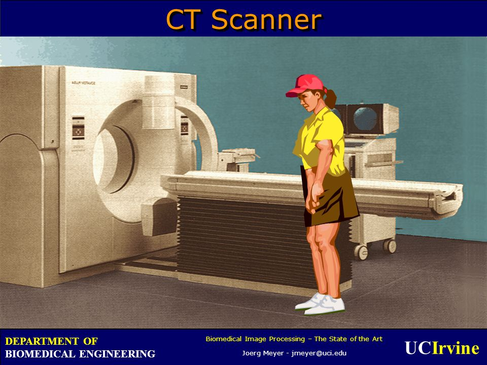 UCIrvine Biomedical Image Processing – The State of the Art Joerg Meyer - jmeyer@uci.edu DEPARTMENT OF BIOMEDICAL ENGINEERING CT Scanner