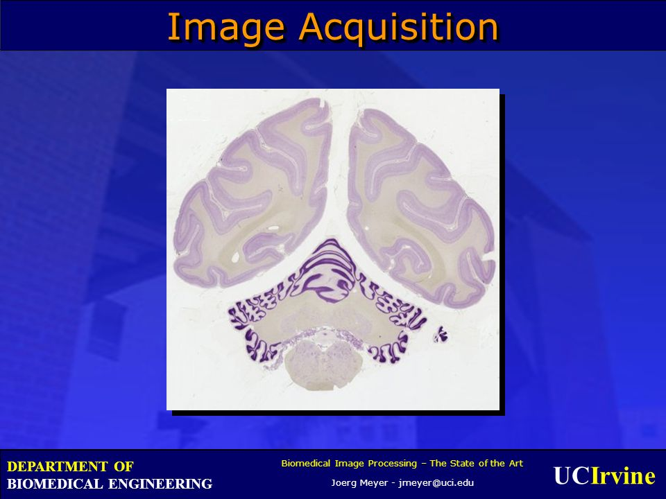 UCIrvine Biomedical Image Processing – The State of the Art Joerg Meyer - jmeyer@uci.edu DEPARTMENT OF BIOMEDICAL ENGINEERING Image Acquisition