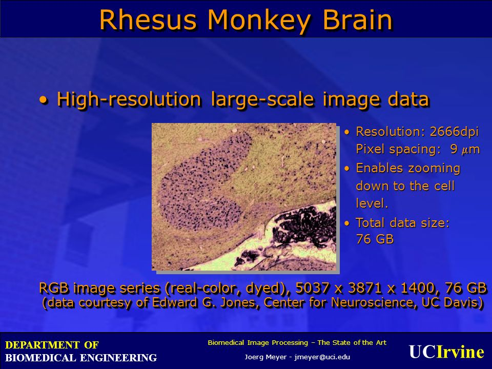 UCIrvine Biomedical Image Processing – The State of the Art Joerg Meyer - jmeyer@uci.edu DEPARTMENT OF BIOMEDICAL ENGINEERING Rhesus Monkey Brain High-resolution large-scale image dataHigh-resolution large-scale image data RGB image series (real-color, dyed), 5037 x 3871 x 1400, 76 GB (data courtesy of Edward G.