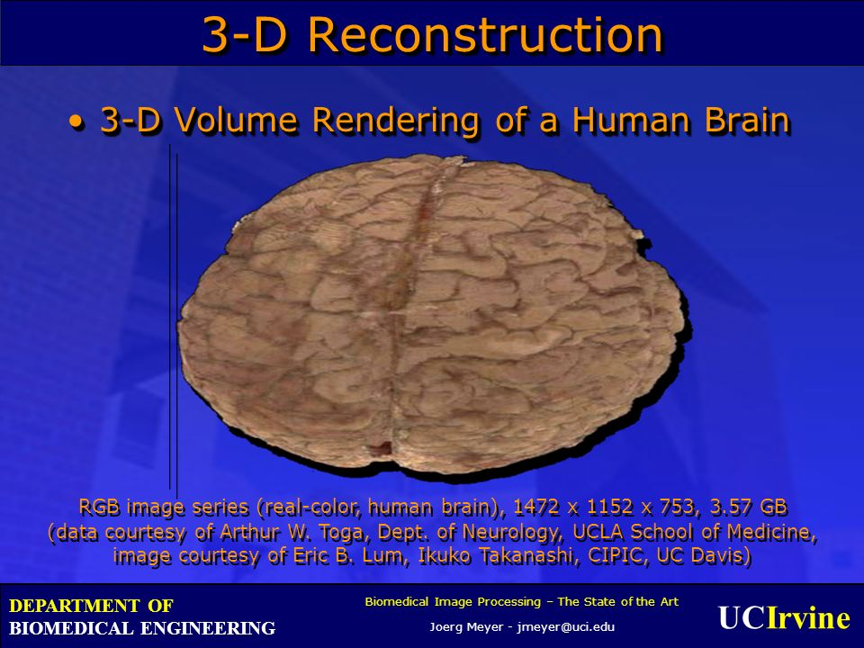 UCIrvine Biomedical Image Processing – The State of the Art Joerg Meyer - jmeyer@uci.edu DEPARTMENT OF BIOMEDICAL ENGINEERING 3-D Reconstruction 3-D Volume Rendering of a Human Brain3-D Volume Rendering of a Human Brain RGB image series (real-color, human brain), 1472 x 1152 x 753, 3.57 GB (data courtesy of Arthur W.
