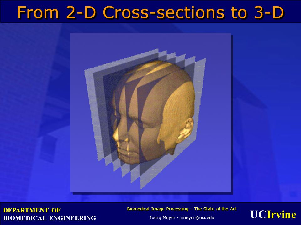 UCIrvine Biomedical Image Processing – The State of the Art Joerg Meyer - jmeyer@uci.edu DEPARTMENT OF BIOMEDICAL ENGINEERING From 2-D Cross-sections to 3-D