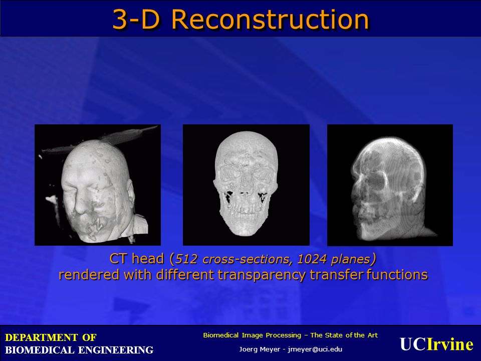 UCIrvine Biomedical Image Processing – The State of the Art Joerg Meyer - jmeyer@uci.edu DEPARTMENT OF BIOMEDICAL ENGINEERING 3-D Reconstruction CT he