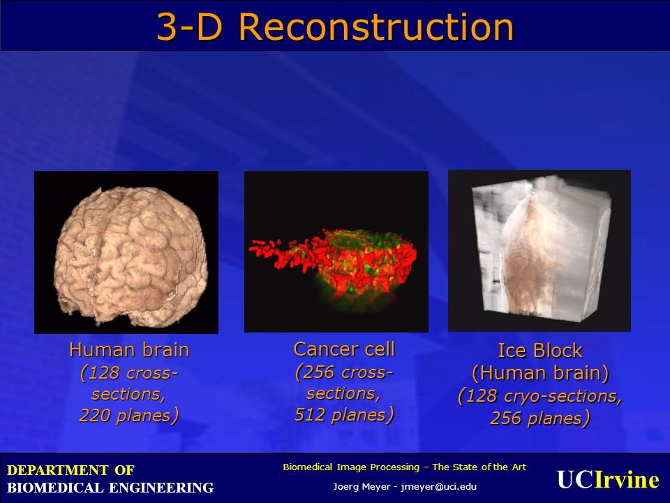 UCIrvine Biomedical Image Processing – The State of the Art Joerg Meyer - jmeyer@uci.edu DEPARTMENT OF BIOMEDICAL ENGINEERING Human brain ( 128 cross- sections, 220 planes ) Cancer cell ( 256 cross- sections, 512 planes ) Ice Block (Human brain) ( 128 cryo-sections, 256 planes ) 3-D Reconstruction