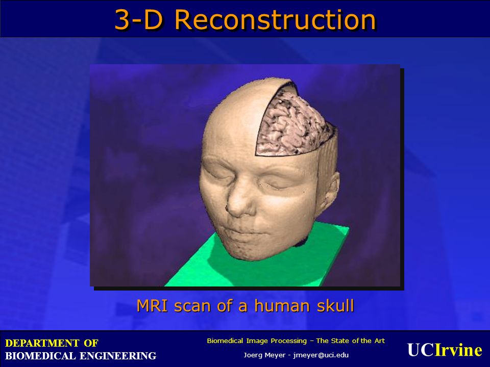 UCIrvine Biomedical Image Processing – The State of the Art Joerg Meyer - jmeyer@uci.edu DEPARTMENT OF BIOMEDICAL ENGINEERING 3-D Reconstruction MRI scan of a human skull