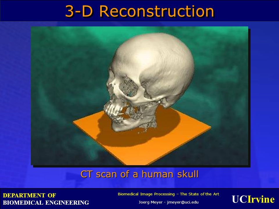 UCIrvine Biomedical Image Processing – The State of the Art Joerg Meyer - jmeyer@uci.edu DEPARTMENT OF BIOMEDICAL ENGINEERING 3-D Reconstruction CT scan of a human skull