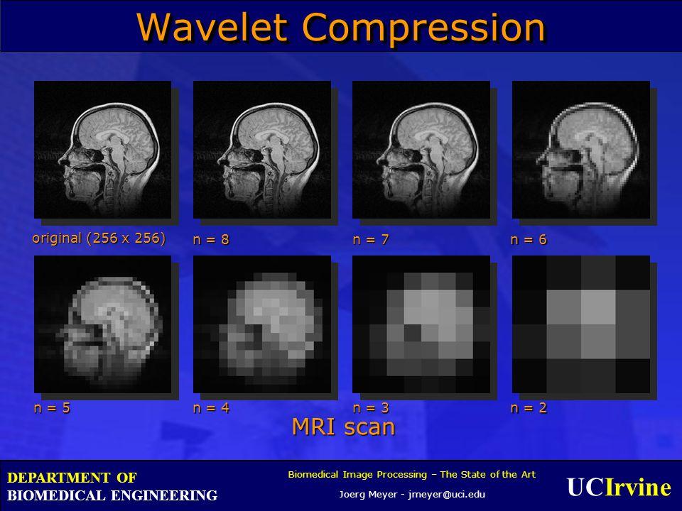 UCIrvine Biomedical Image Processing – The State of the Art Joerg Meyer - jmeyer@uci.edu DEPARTMENT OF BIOMEDICAL ENGINEERING Wavelet Compression MRI
