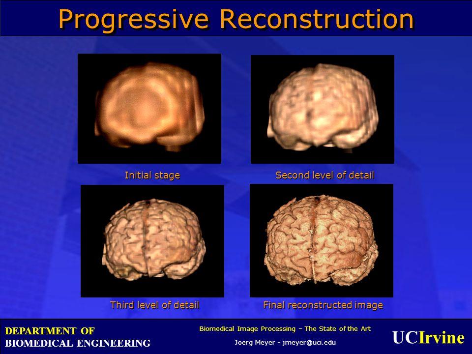 UCIrvine Biomedical Image Processing – The State of the Art Joerg Meyer - jmeyer@uci.edu DEPARTMENT OF BIOMEDICAL ENGINEERING Progressive Reconstructi
