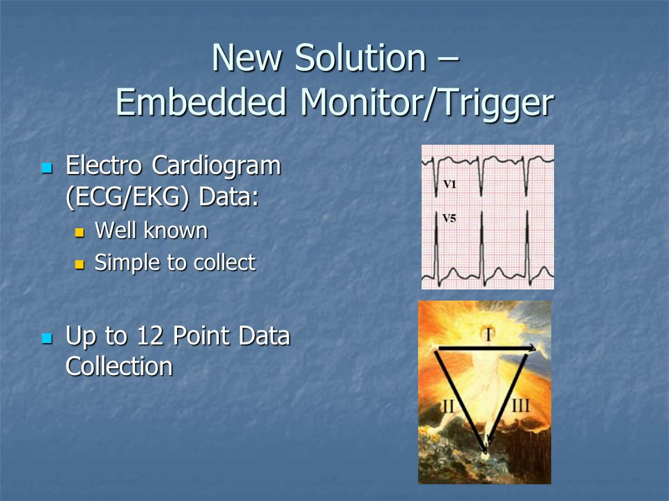 New Solution – Embedded Monitor/Trigger Electro Cardiogram (ECG/EKG) Electro Cardiogram (ECG/EKG) Use ECG Data to Trigger Imager Use ECG Data to Trigg