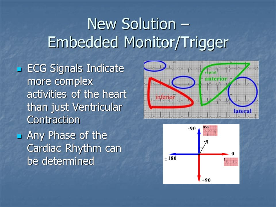 New Solution – Embedded Monitor/Trigger Peaks can act as simple triggers Peaks can act as simple triggers E.g. Trigger on Ventricular Contraction E.g.