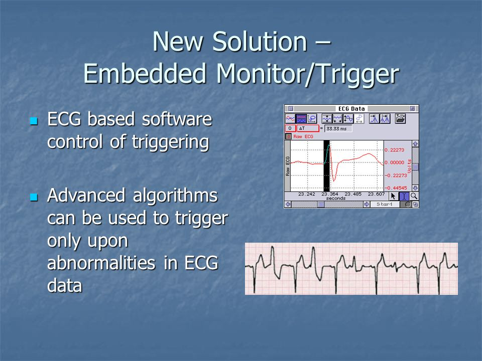 New Solution – Embedded Monitor/Trigger ECG with Signal Processing can Trigger at any point, on any peak or with delays ECG with Signal Processing can
