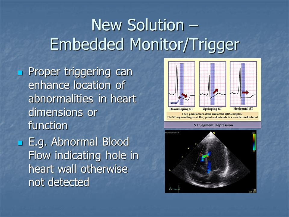 New Solution – Embedded Monitor/Trigger ECG based software control of triggering ECG based software control of triggering Advanced algorithms can be u