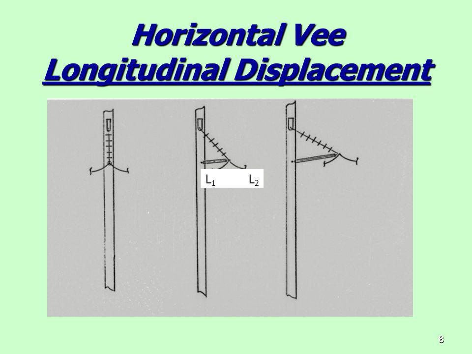 8 Horizontal Vee Longitudinal Displacement L 1 L 2