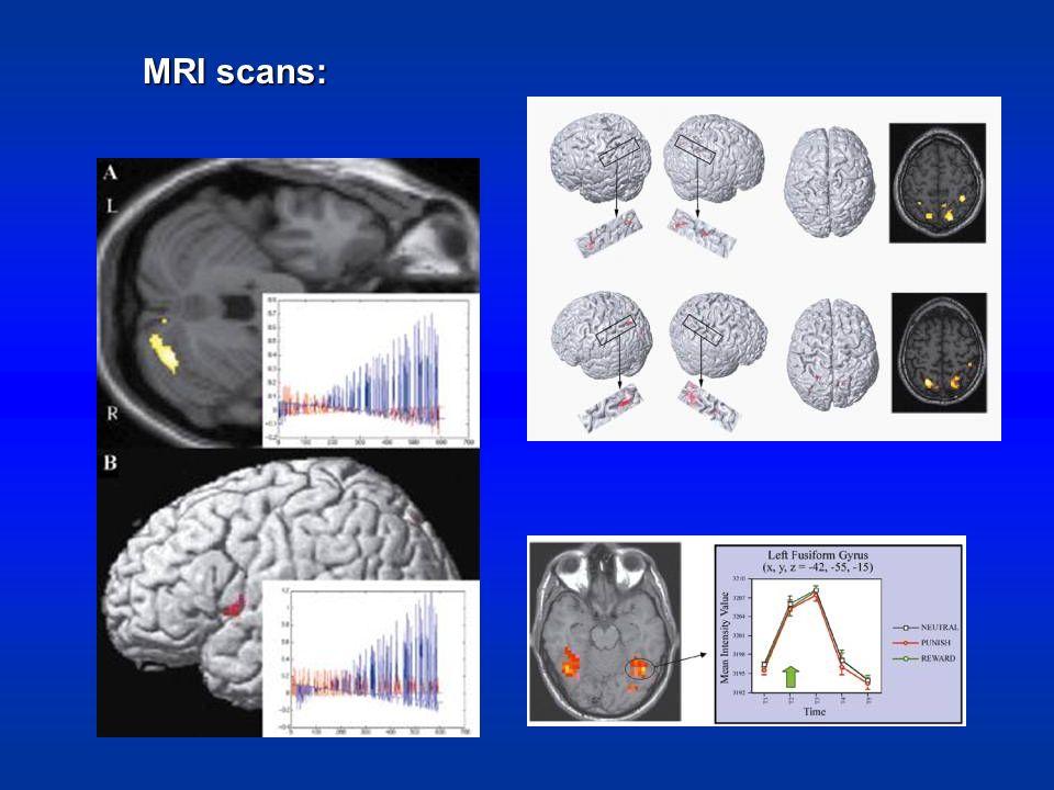 MRI scans: