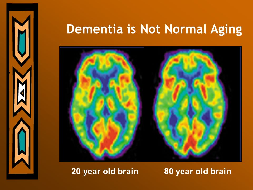 Dementia is Not Normal Aging 20 year old brain 80 year old brain
