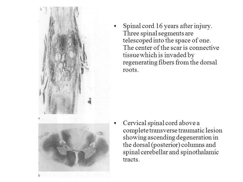 Spinal cord 16 years after injury. Three spinal segments are telescoped into the space of one. The center of the scar is connective tissue which is in