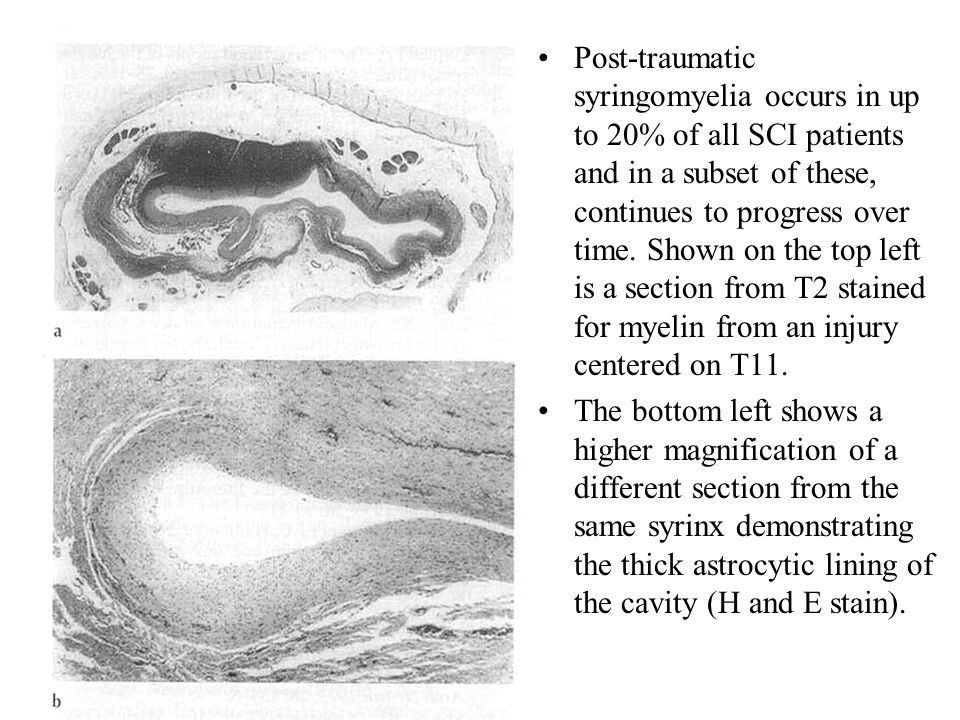 Post-traumatic syringomyelia occurs in up to 20% of all SCI patients and in a subset of these, continues to progress over time. Shown on the top left