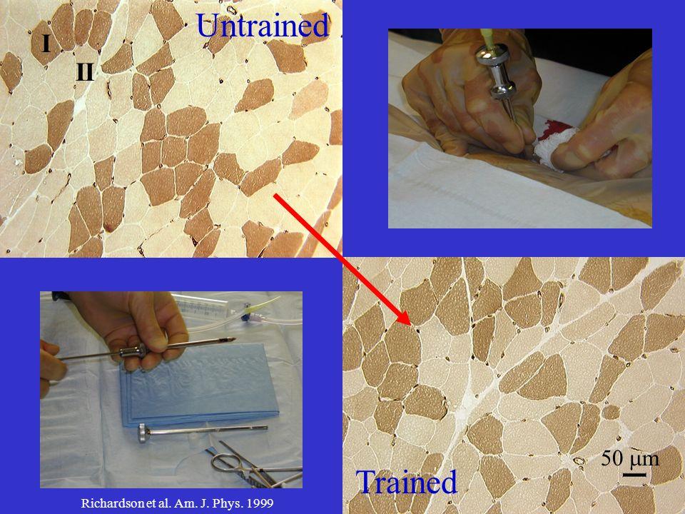 Untrained Trained II I 50 m Richardson et al. Am. J. Phys. 1999