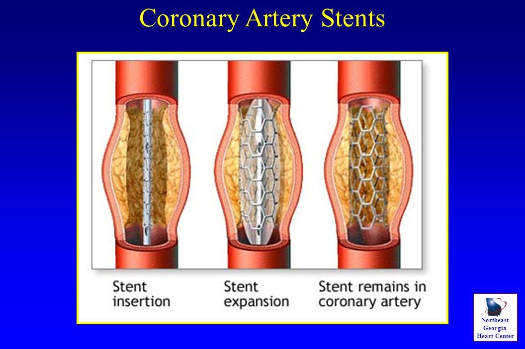 Northeast Georgia Heart Center Coronary Artery Stents