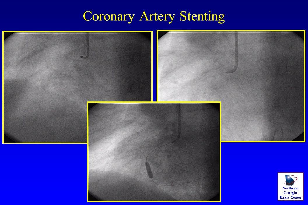 Northeast Georgia Heart Center Coronary Artery Stenting