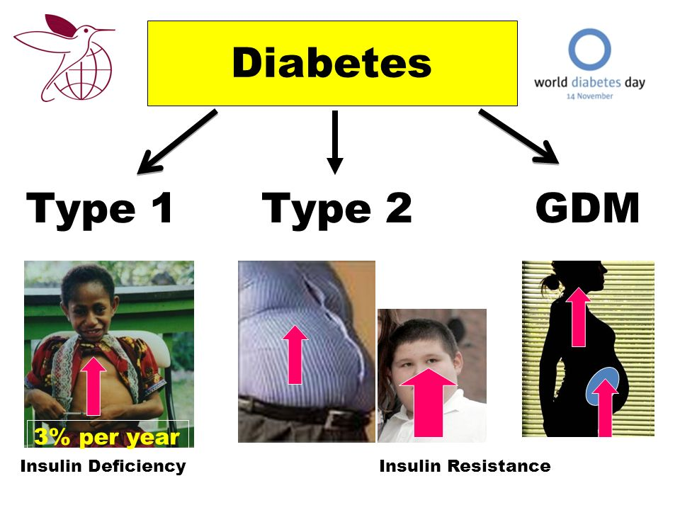 Diabetes Type 1Type 2 Insulin DeficiencyInsulin Resistance GDM 3% per year
