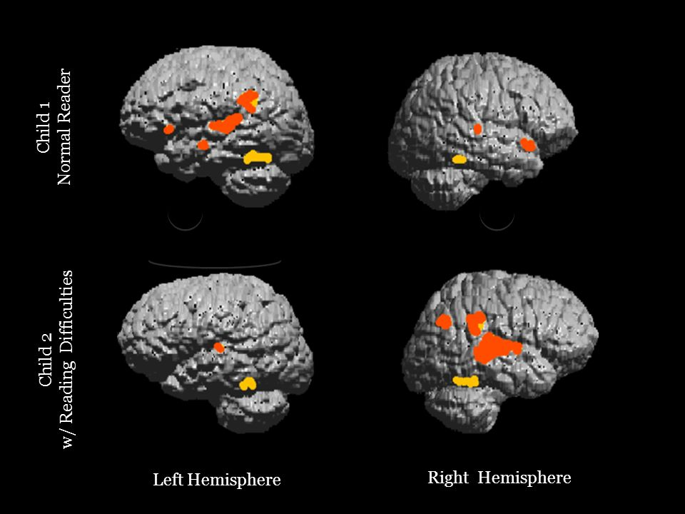Left Hemisphere Right Hemisphere Child 2 w/ Reading Difficulties Child 1 Normal Reader