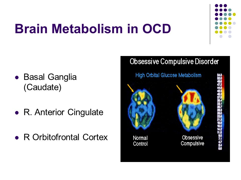 Brain Metabolism in OCD Basal Ganglia (Caudate) R. Anterior Cingulate R Orbitofrontal Cortex