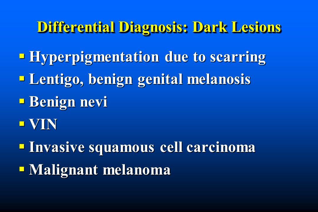 Differential Diagnosis: Dark Lesions Hyperpigmentation due to scarring Hyperpigmentation due to scarring Lentigo, benign genital melanosis Lentigo, benign genital melanosis Benign nevi Benign nevi VIN VIN Invasive squamous cell carcinoma Invasive squamous cell carcinoma Malignant melanoma Malignant melanoma