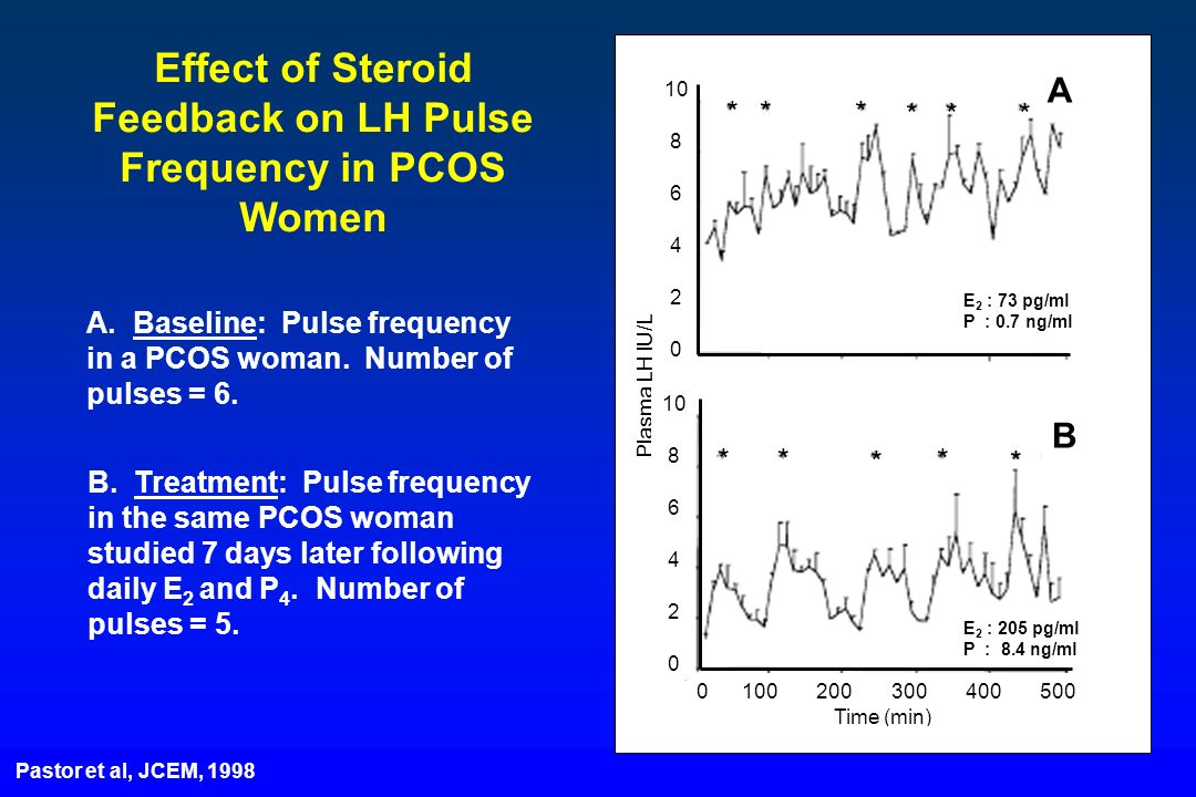 A. Baseline: Pulse frequency in a PCOS woman. Number of pulses = 6. B. Treatment: Pulse frequency in the same PCOS woman studied 7 days later followin