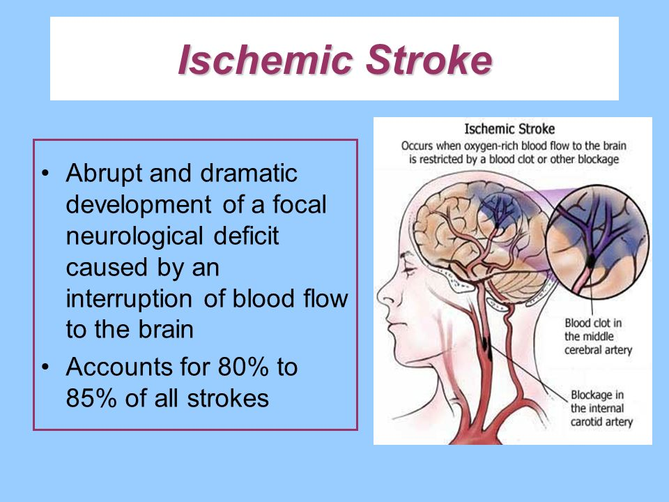 Ischemic Stroke Abrupt and dramatic development of a focal neurological deficit caused by an interruption of blood flow to the brain Accounts for 80%