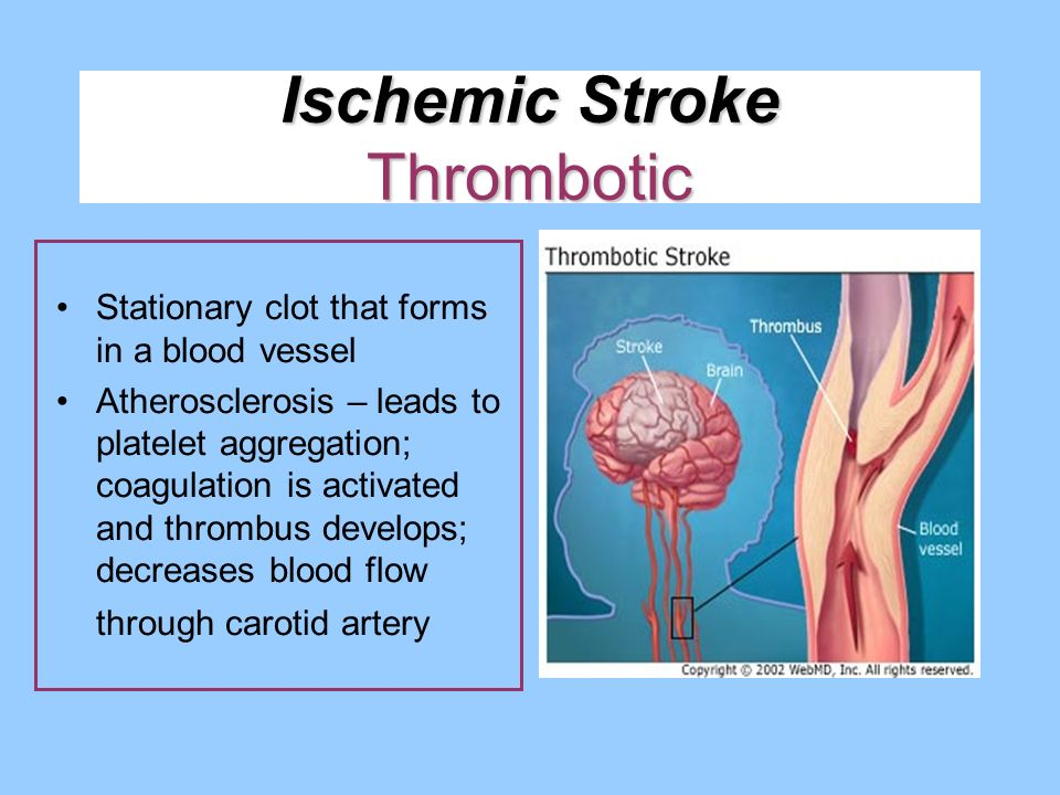 Ischemic Stroke Thrombotic Stationary clot that forms in a blood vessel Atherosclerosis – leads to platelet aggregation; coagulation is activated and
