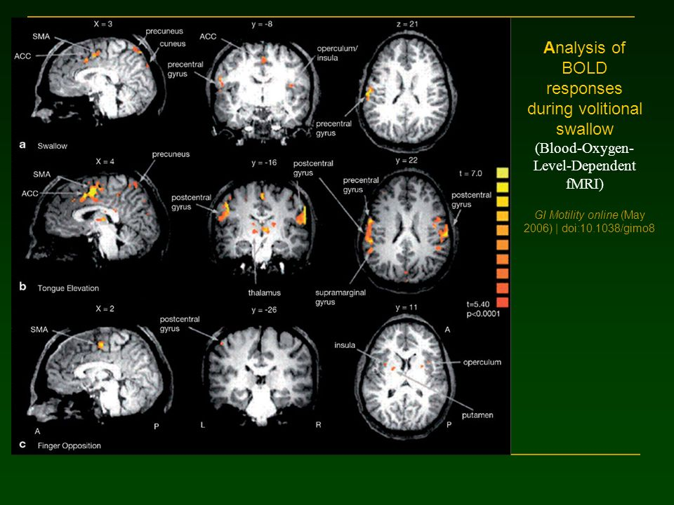 GI Motility online (May 2006) | doi:10.1038/gimo8 Analysis of BOLD responses during volitional swallow (Blood-Oxygen- Level-Dependent fMRI)