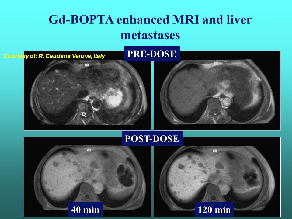 Metastases Pre T1-GRE Post Mn-DP T1-GRE Pre FSE T2 Mangofodipir trisodium (Mn-DpDp):