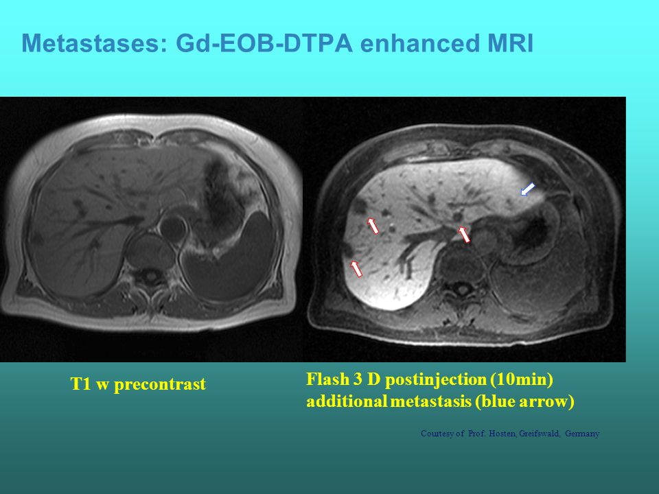 Gd-BOPTA enhanced MRI and liver metastases PRE-DOSE POST-DOSE 40 min 120 min Courtesy of: R.