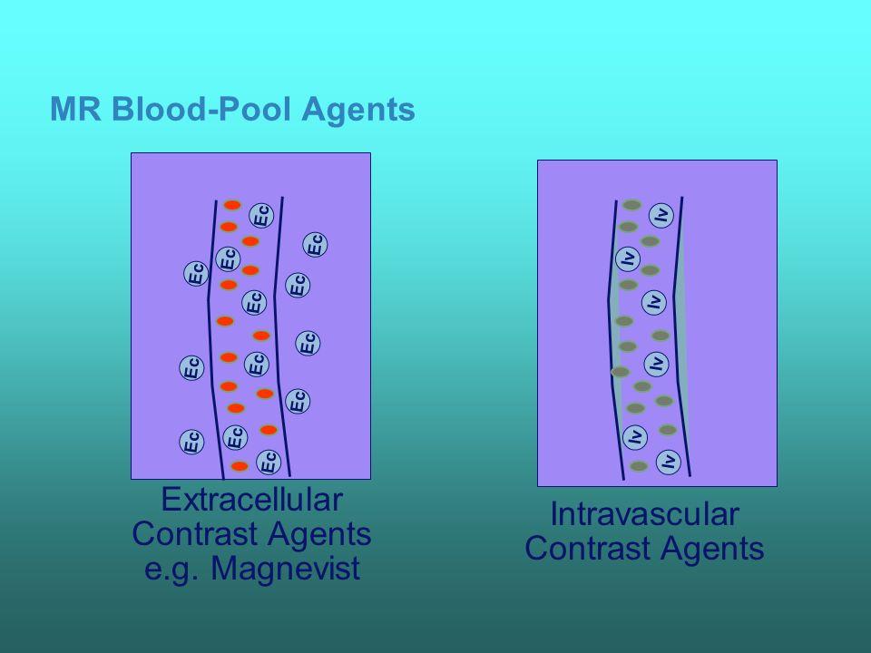 Metastases: Gd-EOB-DTPA enhanced MRI T1 w precontrast Flash 3 D postinjection (10min) additional metastasis (blue arrow) Courtesy of Prof.