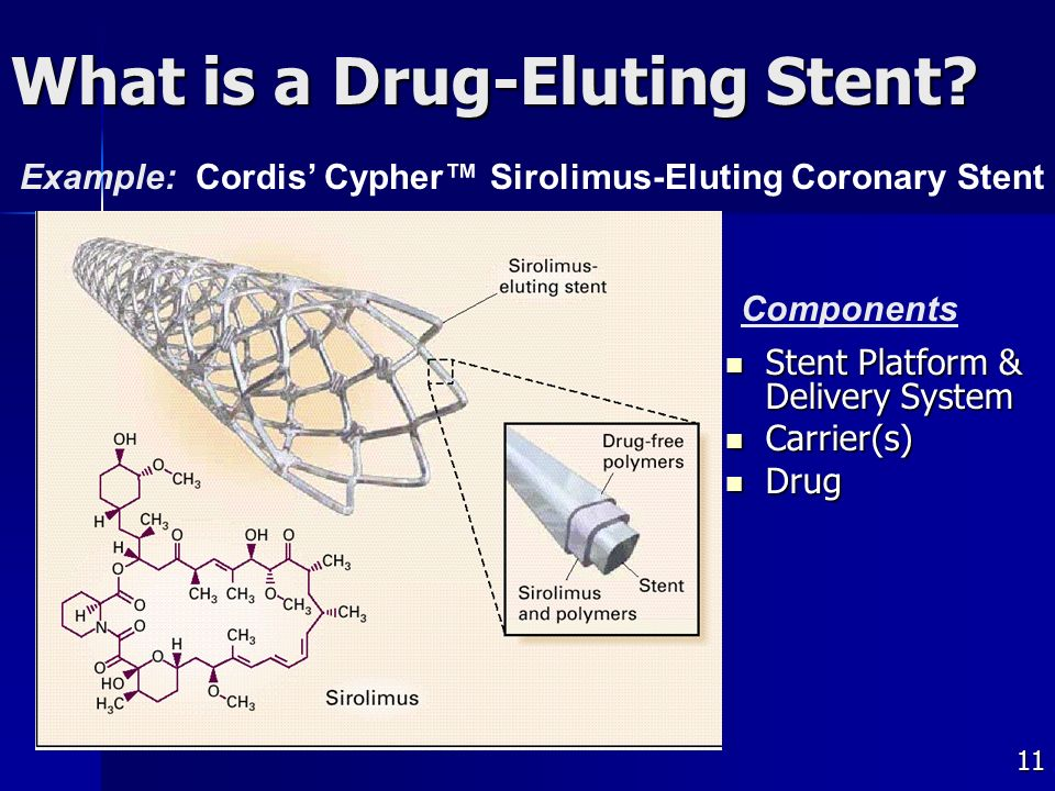 11 What is a Drug-Eluting Stent.