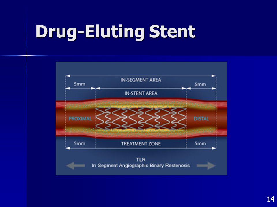 14 Drug-Eluting Stent