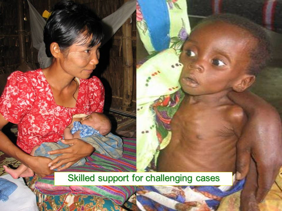 Skilled support for challenging cases 149