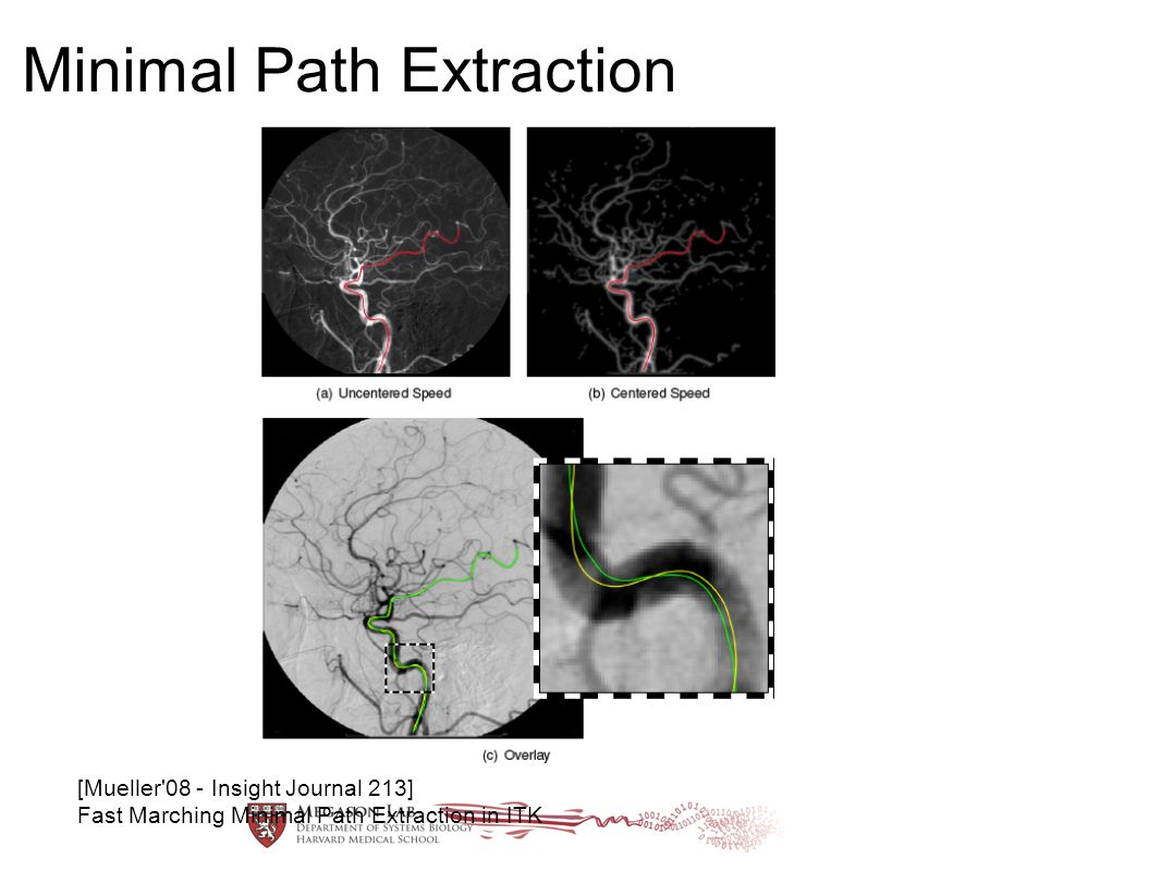 Minimal Path Extraction [Mueller'08 - Insight Journal 213] Fast Marching Minimal Path Extraction in ITK