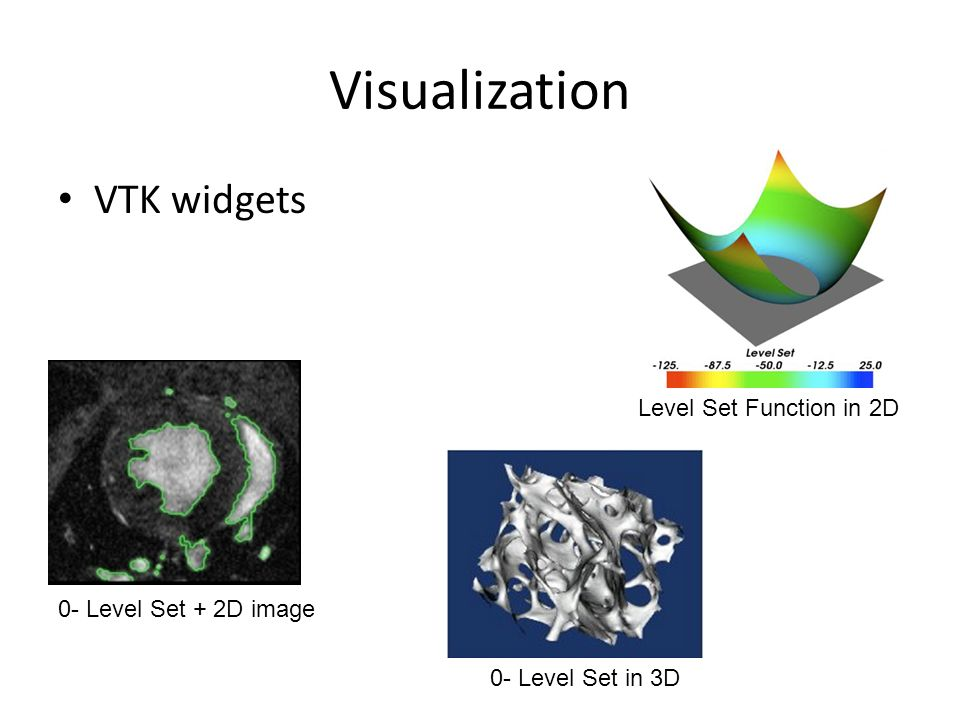 Visualization VTK widgets 0- Level Set + 2D image 0- Level Set in 3D Level Set Function in 2D