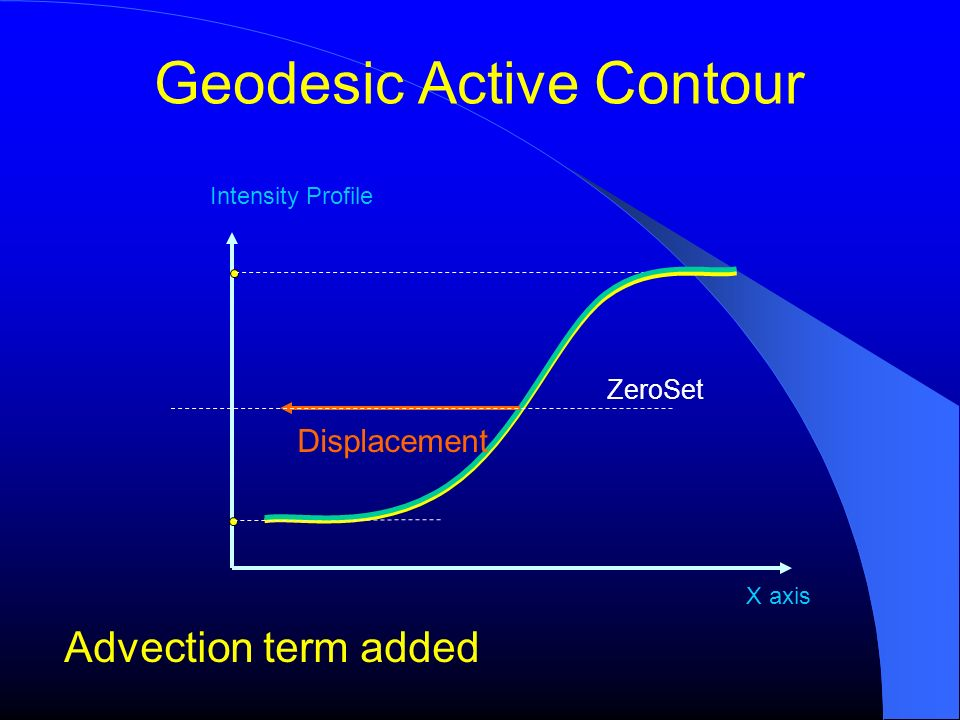 Geodesic Active Contour Advection term added Intensity Profile X axis Displacement ZeroSet