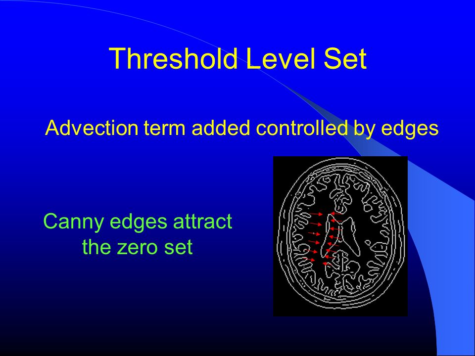 Threshold Level Set Advection term added controlled by edges Canny edges attract the zero set