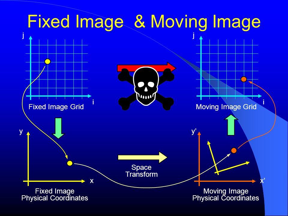 Fixed Image & Moving Image Fixed Image Grid j i y x Fixed Image Physical Coordinates y x Moving Image Physical Coordinates Moving Image Grid j i Space