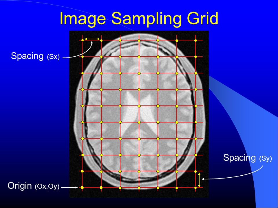 Image Pixel Origin (Ox,Oy) Spacing (Sy) Spacing (Sx) Pixel Value Pixel Region
