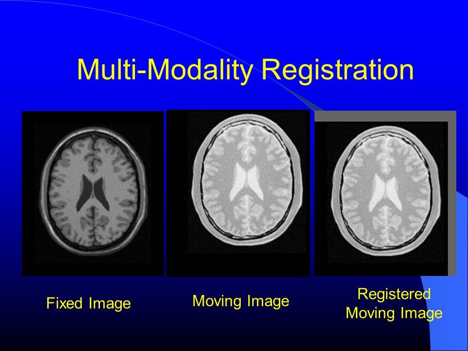 Multi-Modality Registration Fixed Image Moving Image Registered Moving Image