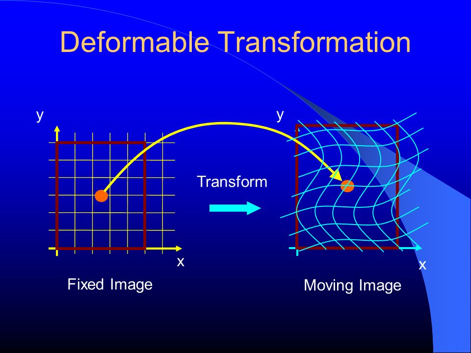 Deformable Transformation y Fixed Image Transform x y Moving Image x