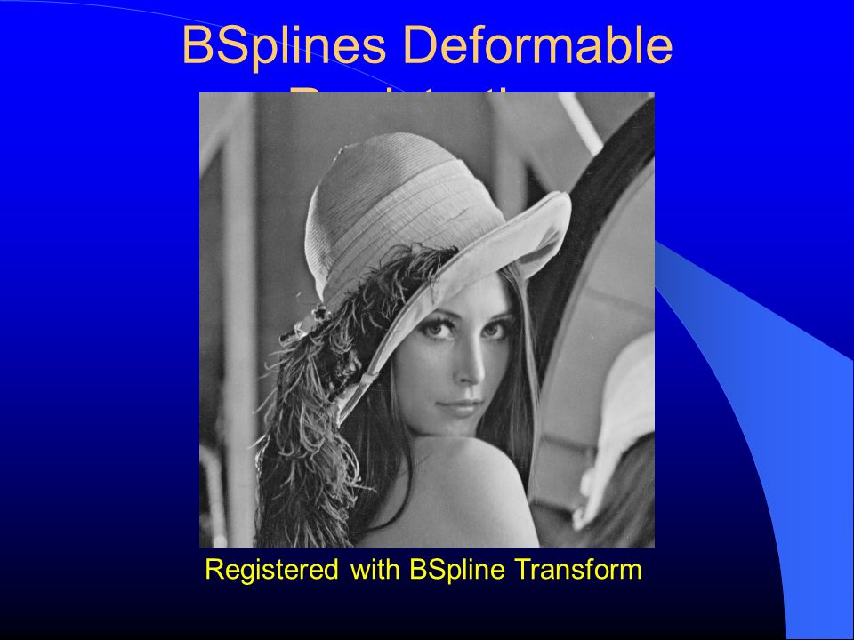 BSplines Deformable Registration Registered with BSpline Transform